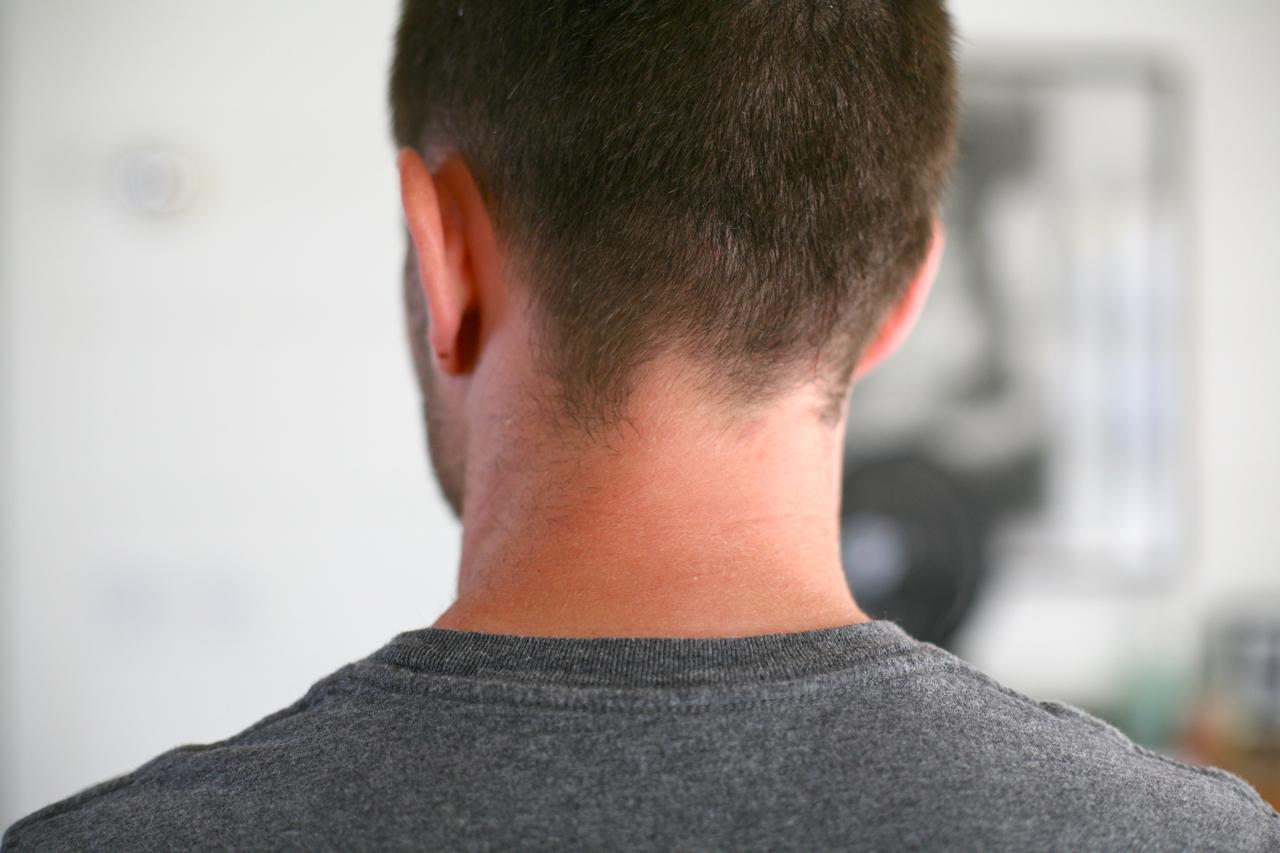 Usar testosterona tem risco relacionado ao câncer de próstata?