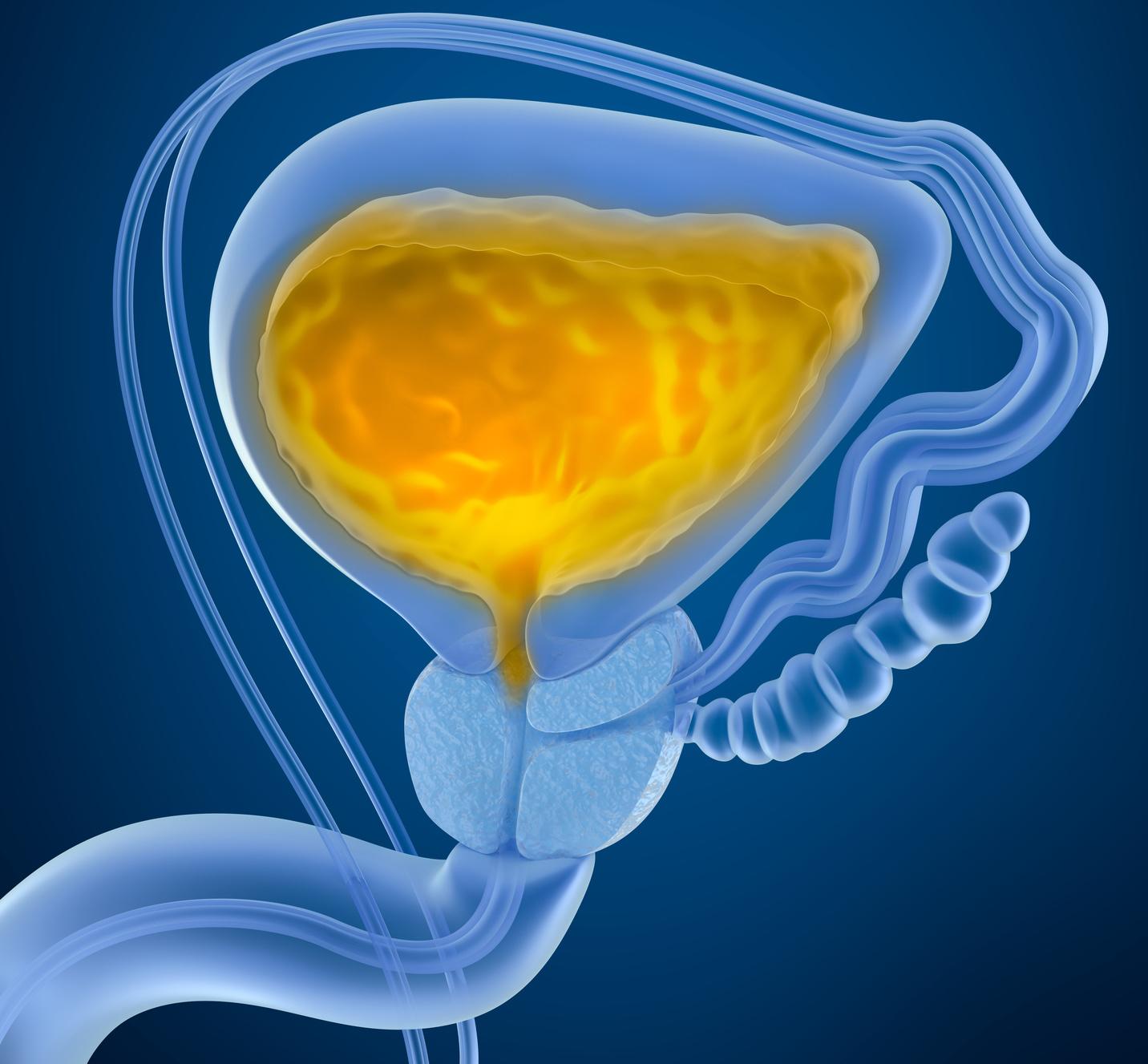 Estenose da uretra dificulta fluxo urinário