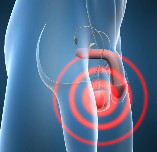 Tumor de testículo