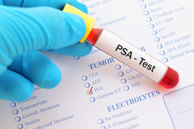O que é o PSA (Antígeno Prostático Específico)?